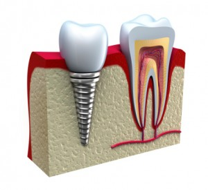 dental implant on adult.