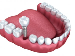 dental implants in bloomfield hills