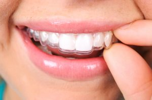 Your dentist in Bloomfield Hills straightens teeth without embarrassing metal.