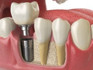 computer rendering of dental implants